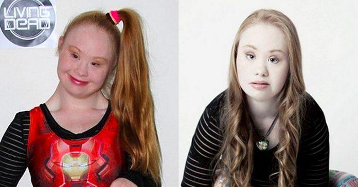 Adolescente sindrome down modelo