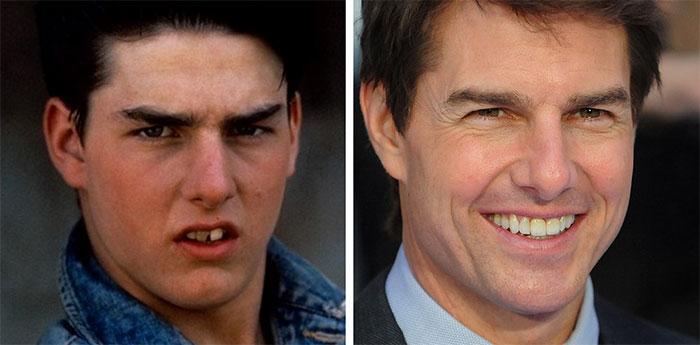 Antes y después de las sonrisas de famosos