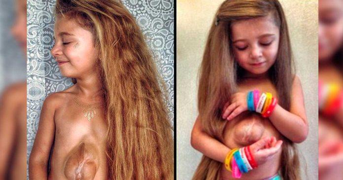 Conoce a esta increible nina de seis anos que nacio con el corazon fuera del pecho