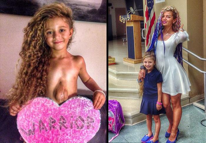 Conoce a esta Increíble Niña de seis años que Nació con el Corazón fuera del Pecho