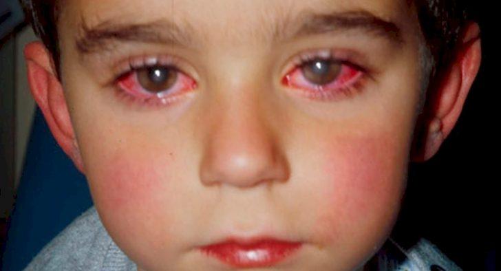 """Un pequeño pierde el 75% de la visión por culpa de un """"Juguete"""" muy común en los Hogares"""