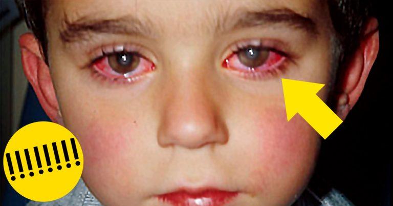Un pequeño pierde el 75% de la visión por culpa de un «Juguete» muy común en los Hogares