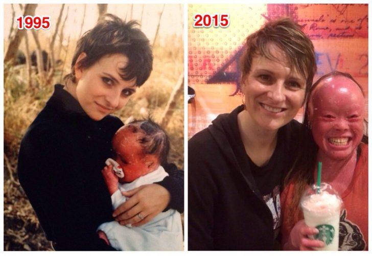 Mui: El bebé que los médicos quisieron encerrar hace más de 20 años después de nacer