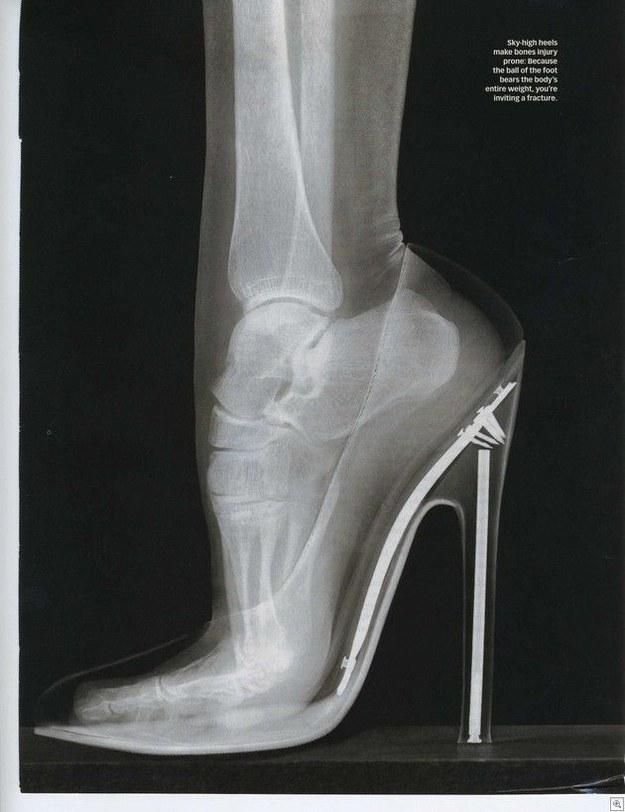 trucos consejos calzado zapato dolor pies 11