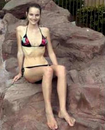 Una chica de 20 años se ve obligada a comer 3 manzanas diarias durante meses para perder peso