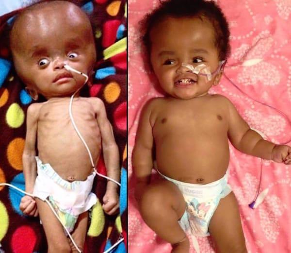 Bebé al borde de la muerte encuentra a su heroína