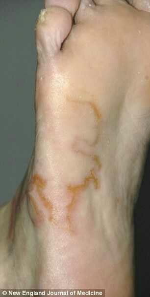 Pensaba que se trataba de simples varices. Pero cuando los Médicos vieron su pie... IMPACTANTE