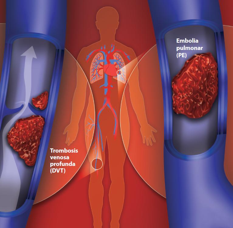 ¿Coágulos de sangre? Te enseñamos cómo detectarlos y qué a hacer al respecto