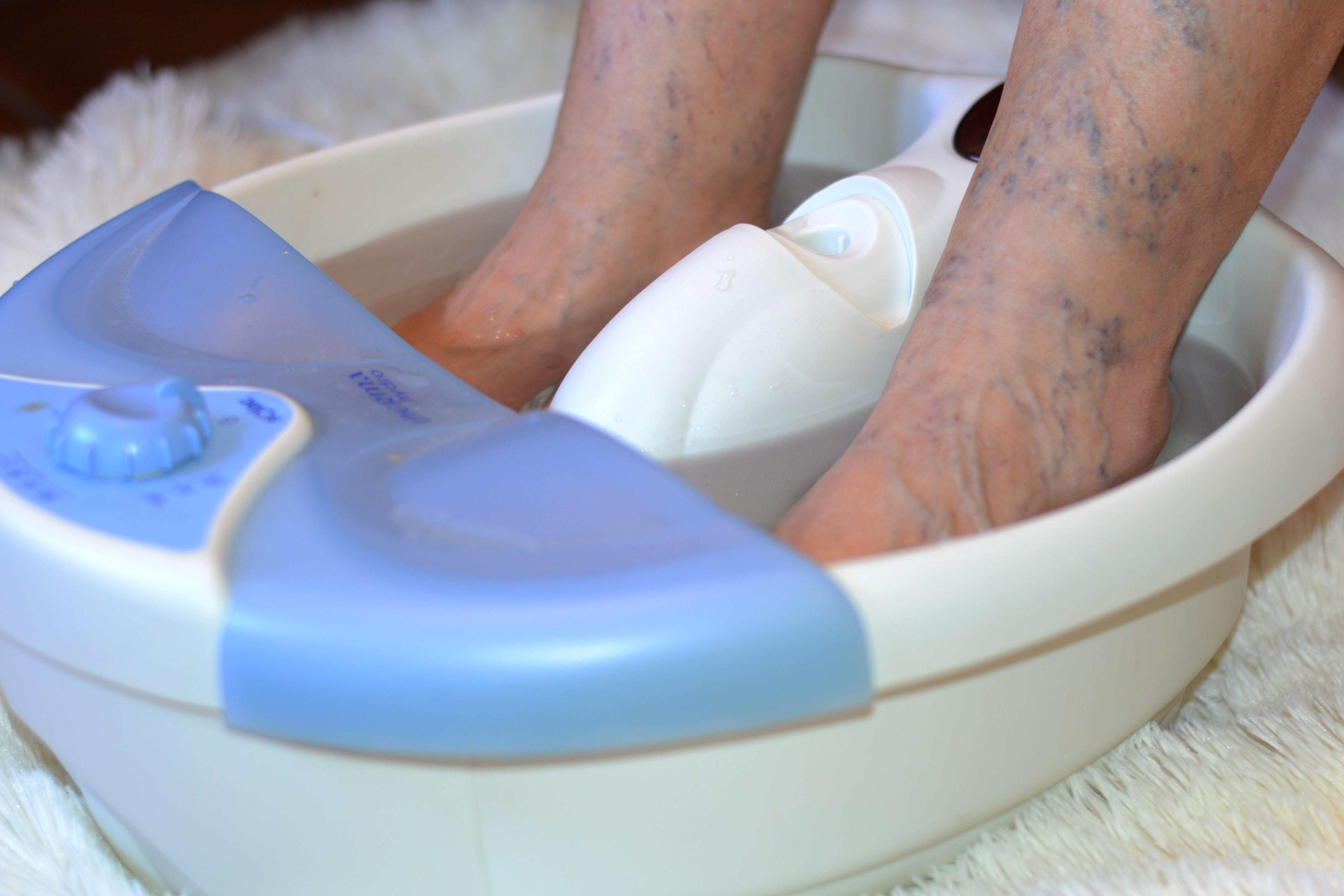 8 impresionantes remedios caseros para los pies hinchados