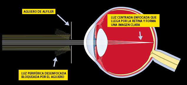 Descubre como recuperar la vista sin necesidad de utilizar gafas 03 copy