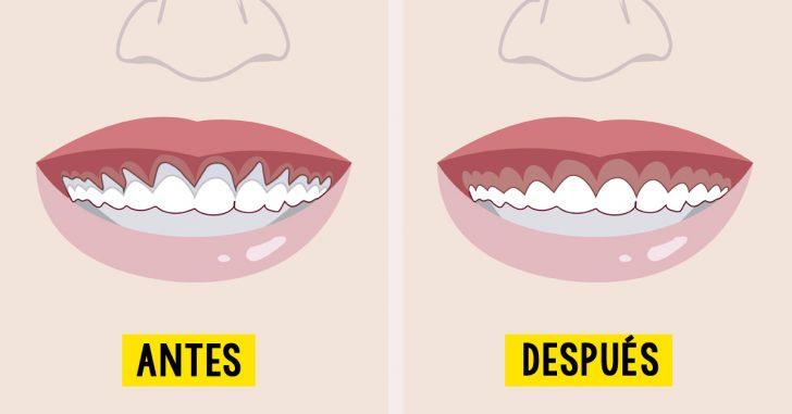 6 remedios naturales para combatir la retracción de las encías