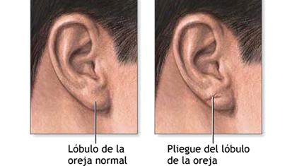 Los pelos del oído podrían predecir si vas a desarrollar una enfermedad cardíaca