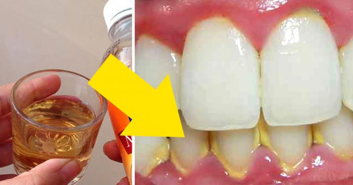 remedio casero sarro dientes banner 2