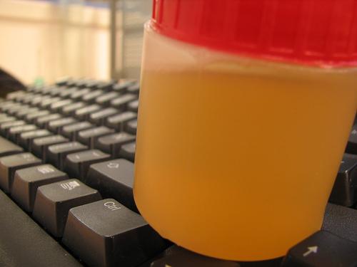8 Señales que tiene el cuerpo para decirte que no bebes suficiente agua