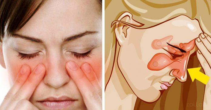 Como Curar Una Sinusitis En Sólo 20 Segundos Con Este Remedio Casero