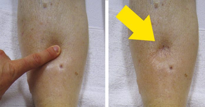 mira esta manera natural de deshacerse de la retencion de liquido en tu cuerpo banner