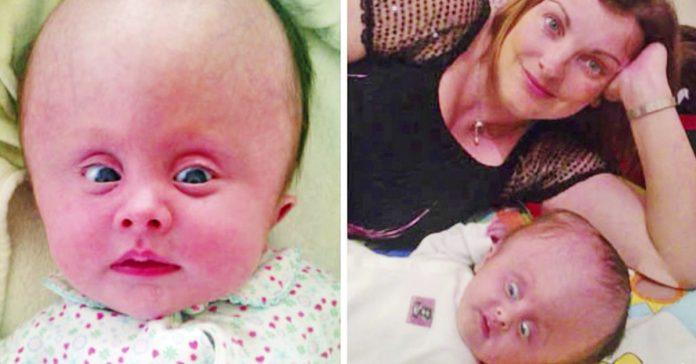 madre se niega a interrumpir el embarazo en consecuencia su bebe nace con una malformacion craneal banner