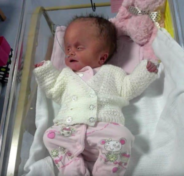 Esta mujer se negó a interrumpir el embarazo, y su bebé nace con una malformación craneal