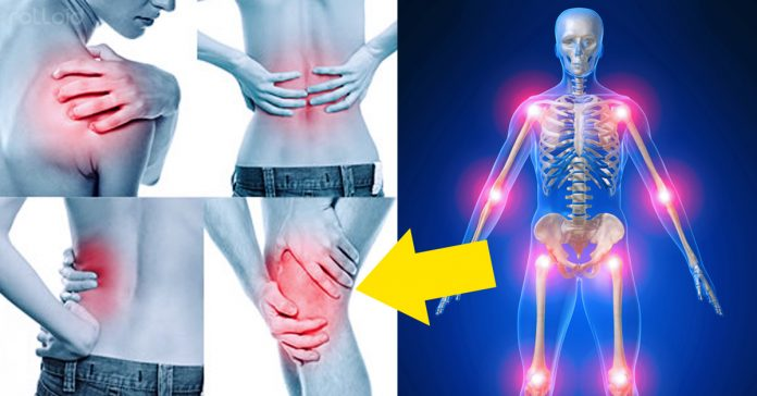sintomas dolores artritis 2