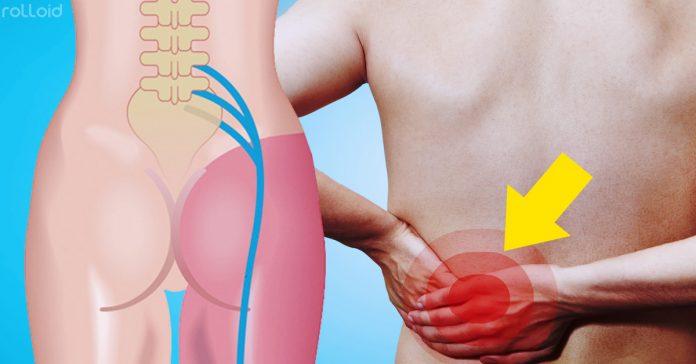 8 remedios naturales para aliviar los dolores de la ciatica
