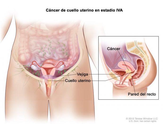 Estos son los síntomas del cáncer de cuello uterino que toda mujer debería conocer