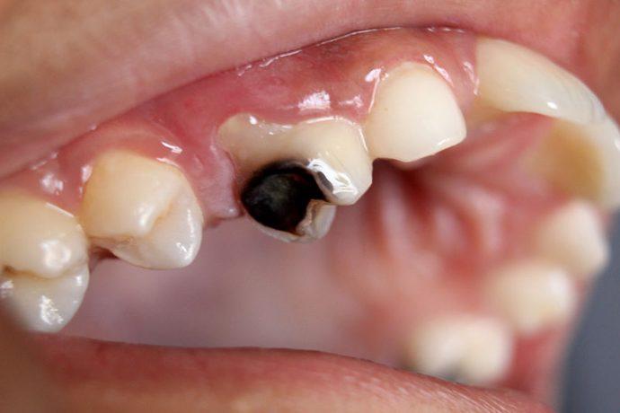 Los impresionantes beneficios que el aceite de coco tiene para tu boca