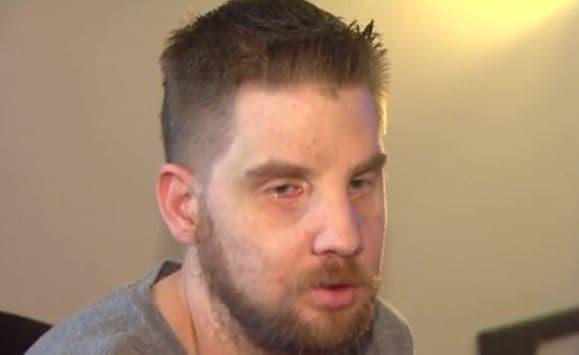 Hunter: El chico que recibió el transplante de cara más caro de la historia enseña su rostro a los 5 años