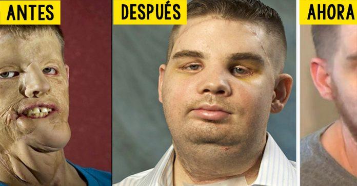 cinco anos despues de recibir un transplante completo de cara este heroe cuenta sus vivencias banner