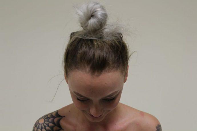Una mujer sufre las consecuencias de llevar el pelo recogido durante años