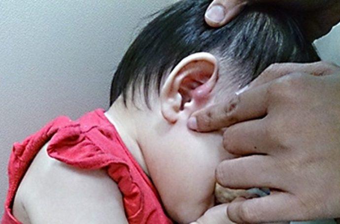 1 de cada 100 personas nace con este orificio extra en la oreja. ¿Sabes por qué?
