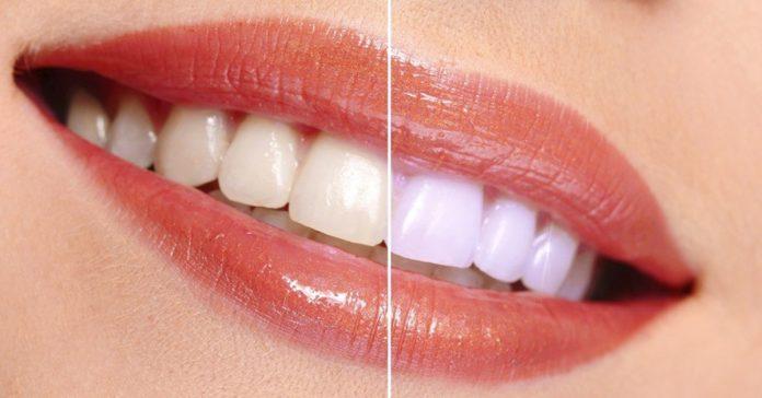9 maneras sorprendentes para blanquear los dientes banner