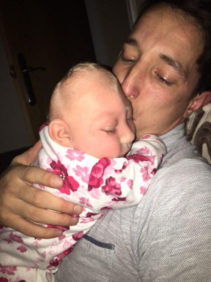 Nació con su cerebro empujando su cráneo pero este bebé superó todas las expectativas