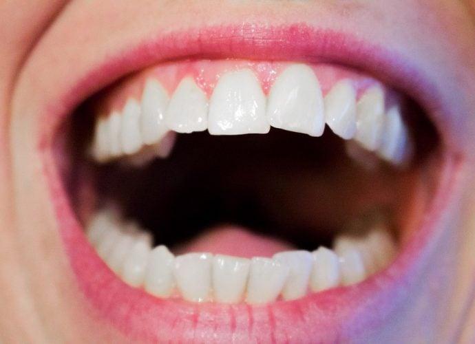 dientes 1478089437