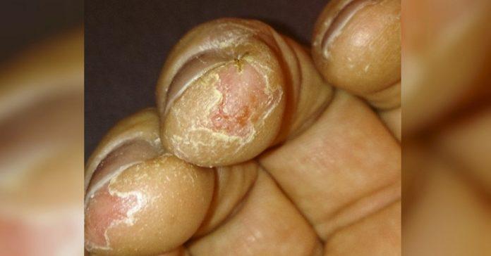 8 trucos para curar las puntas de los dedos secos y agrietados durante el invierno banner