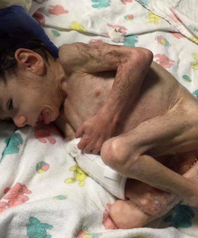 Encuentran a un pequeño en un orfanato cubierto de pelo tras aguantar 7 años hambriento