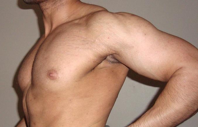 Cómo eliminar las manchas por la edad, las marcas en la piel, las verrugas y las espinillas de forma natural