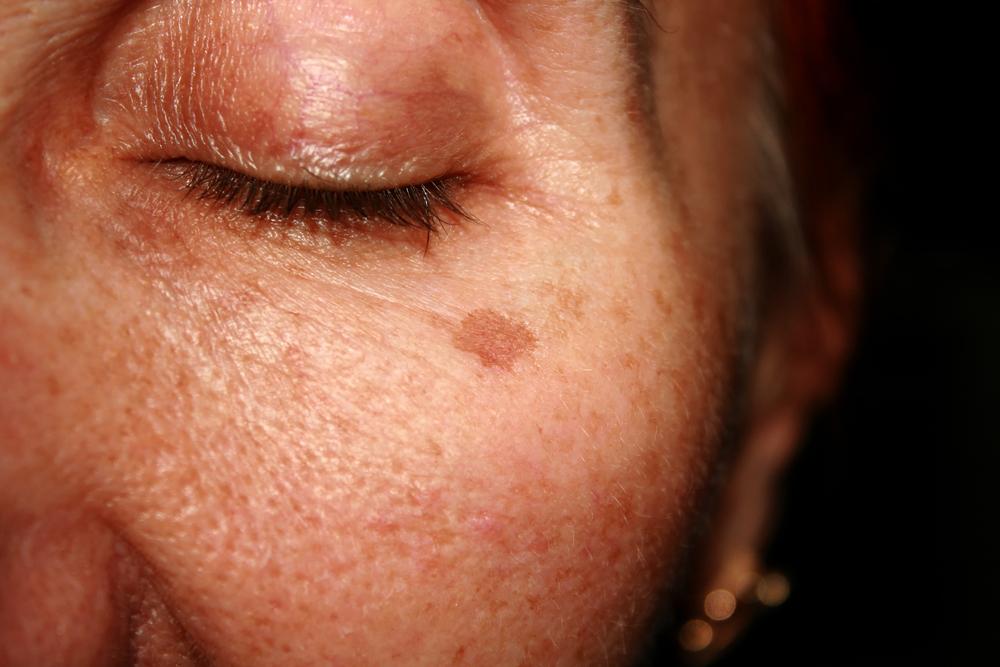 4 Pasos para eliminar las típicas manchas antiestéticas de la piel