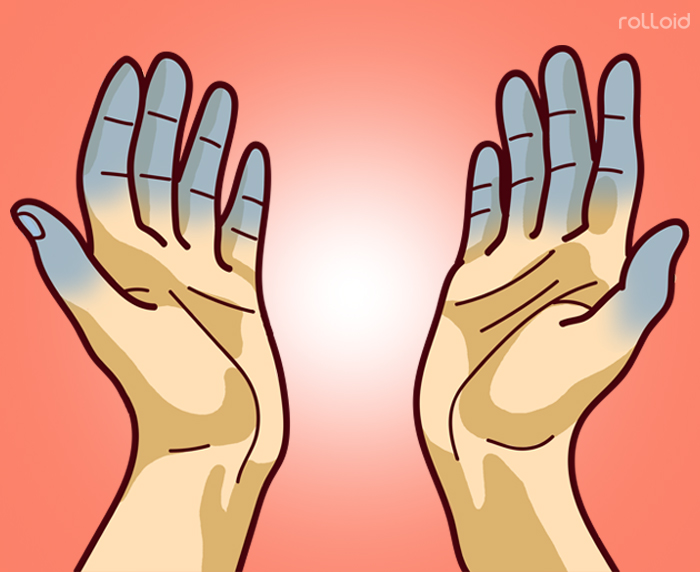 Cuáles son los síntomas más importantes del Lupus y qué hacer