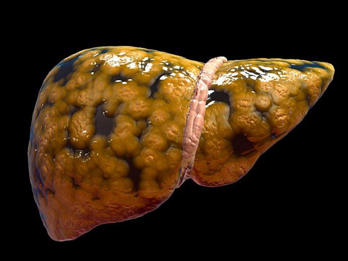 6 Formas en las que estamos destrozando nuestro hígado sin ser ninguna el alcohol