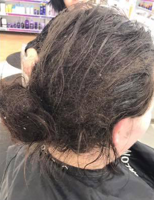Una chica de 23 años queda irreconocible en 8h después de no haberse lavado el pelo durante 6 meses