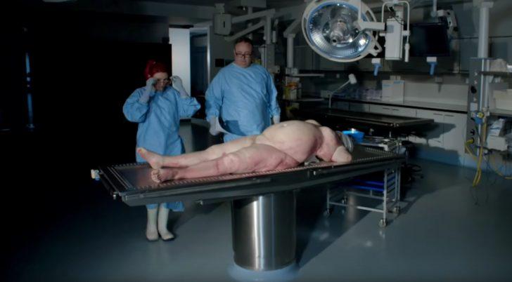 que hay en el interior de una persona obesa 01