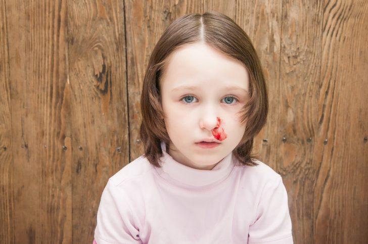 6 de las Razones más comunes por las que acabamos sangrando por la nariz
