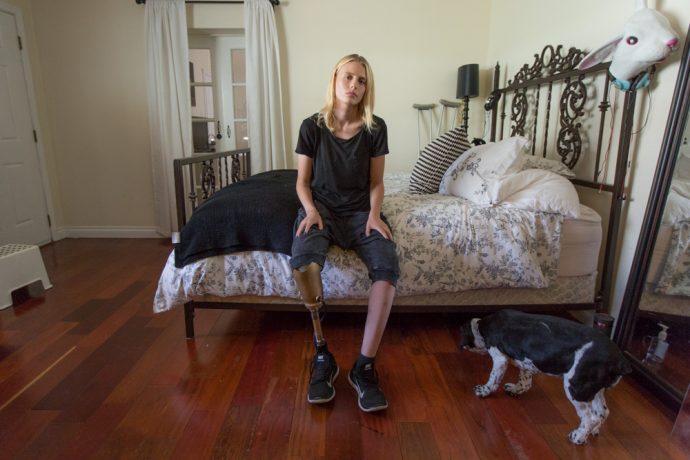 Una modelo de 27 años pierde una pierna después de colocarse un tampón