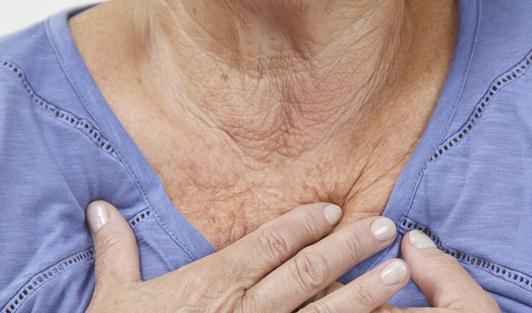 7 Trucos para prevenir y eliminar las arrugas de la zona del escote