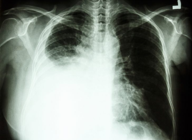 cancer pulmon 3
