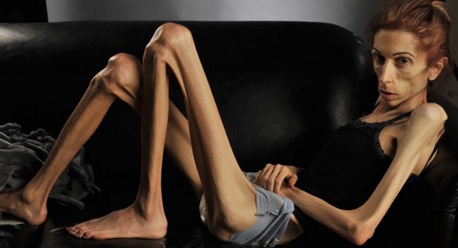 9 Imágenes de la transformación de la mujer que ganó a la anorexia convirtiéndose en un ejemplo a seguir