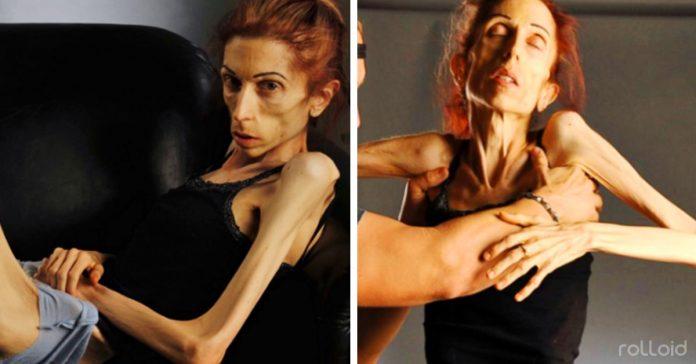 esta mujer ha luchado contra la anorexia y ha ganado a pesar de estar al borde de la muerte banner