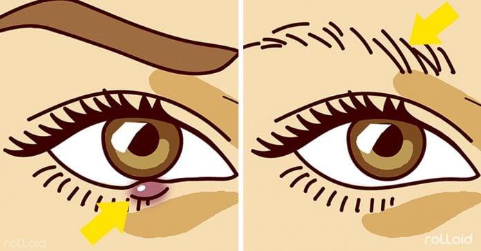 8 sintomas signos enfermedades ojos banner