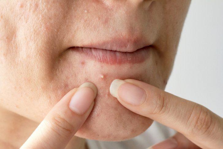 5 Motivos por los que sale acné en cada una de las zonas del cuerpo