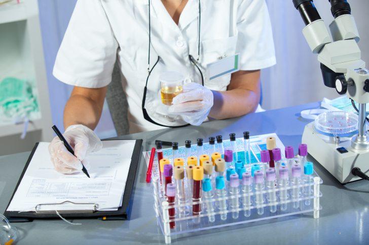 Causas de nivel alto de ácido úrico: Síntomas y remedios
